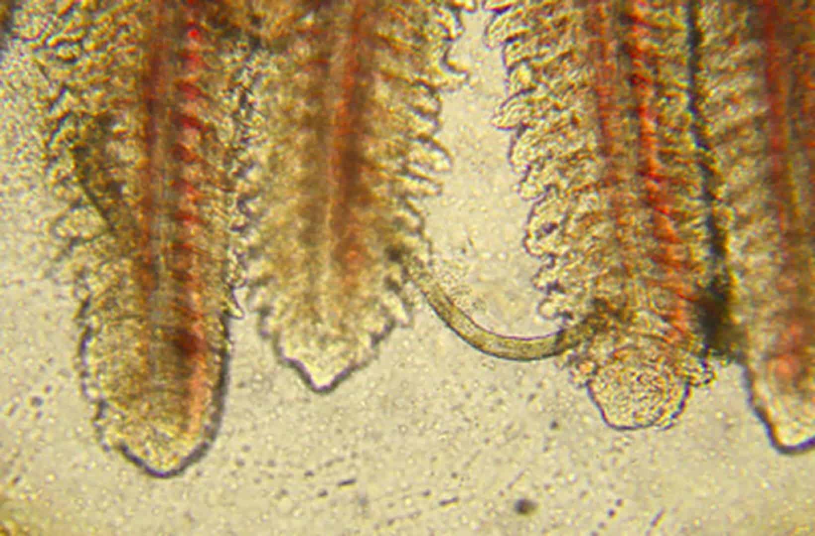 Würmer Kids Krankheiten
